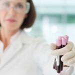Анализы крови и мочи при заболеваниях желудка